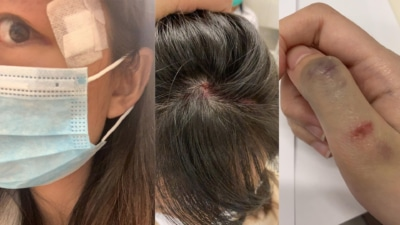 西環天降航拍機擊中女街坊致眼尾縫 5 針 事主:意外一次都嫌多
