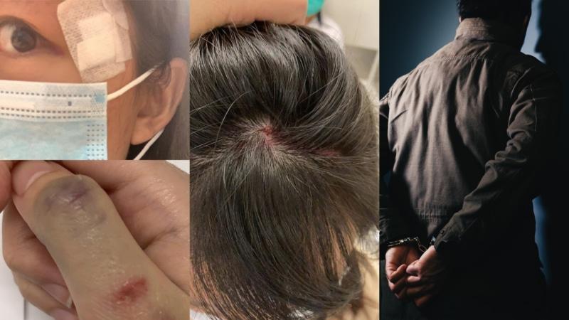 航拍機西環擊中女途人案 警調查後拘捕 33 歲男子